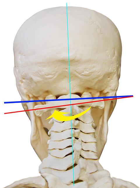 Kopfschmerzen obere schädeldecke