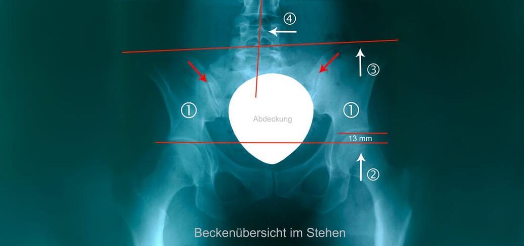 LWS-Syndrom - Schmerz-Therapie-Zentrum Baden-Baden