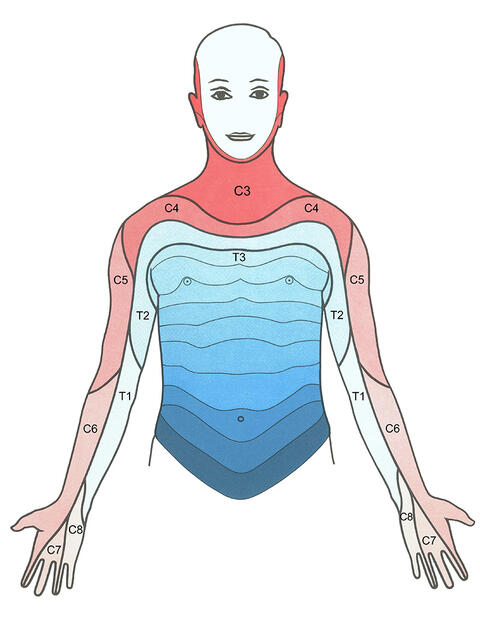 Schulter-Arm-Syndrom - Schmerz-Therapie-Zentrum Baden-Baden