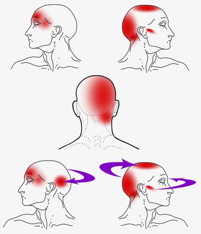 Kopfschmerzen und Gesichtsschmerzen und Maryland
